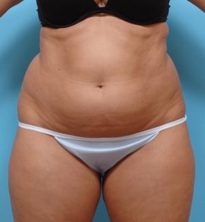 Manhattan liposuction before 6